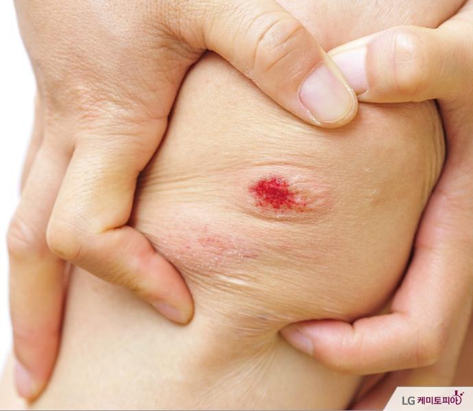 상처가 난 무릎을 두 손으로 잡고 있다.