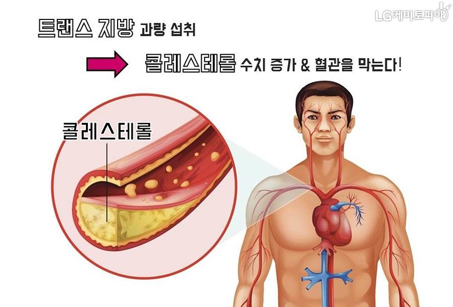 사람의 상반신 내부 혈관 이미지와 콜레스테롤이 쌓인 혈관 단면 이미지(확대컷)/ 트랜스 지방 과량 섭취->콜레스테롤 수치 증가 & 혈관을 막는다!