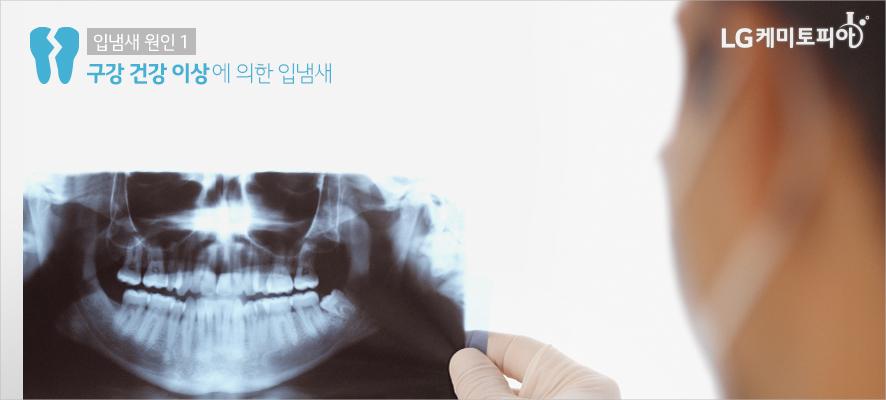 입냄새 원인1: 구강 건강 이상에 의한 입냄새(의사가 구강 엑스레이 촬영 사진을 보고 있다.)