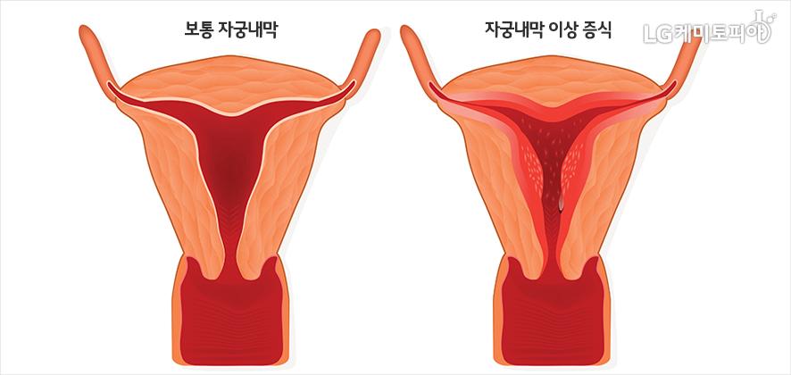 보통 자궁내막과 자궁내막 이상 증식 상태의 자궁