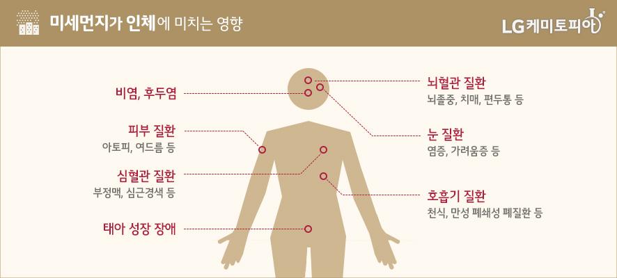 미세먼지가 인체에 미치는 영향: 비염, 후두염/뇌혈관 질환-뇌졸중, 치매, 편두통 등/피부 질환-아토피, 여드름 등/눈 질환-염증, 가려움증 등/심혈관 질환-부정맥, 심근경색 등/호흡기 질환-천식, 만성 폐쇄성 폐질환 등/태아 성장 장애