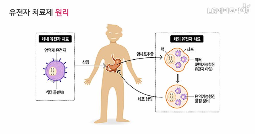 유전자 치료제 원리를 체내 유전자 치료와 체외 유전자 치료로 나누어 설명하는 그림