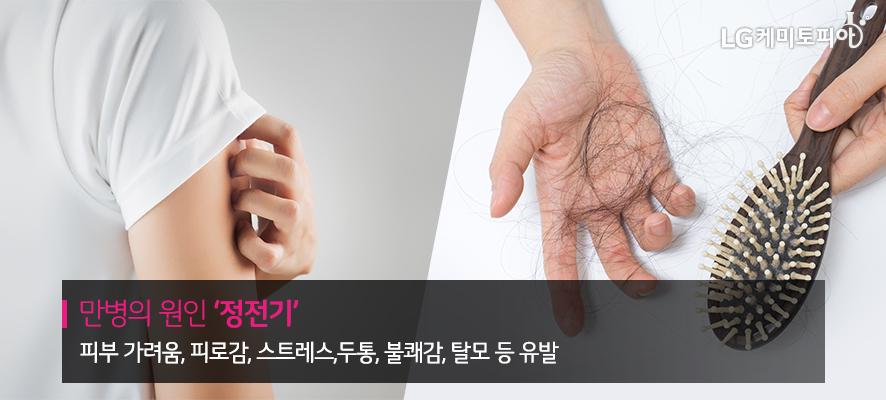 만병의 원인 '정전기' 피부 가려움, 피로감, 스트레스, 두통, 불쾌감, 탈모 등 유발