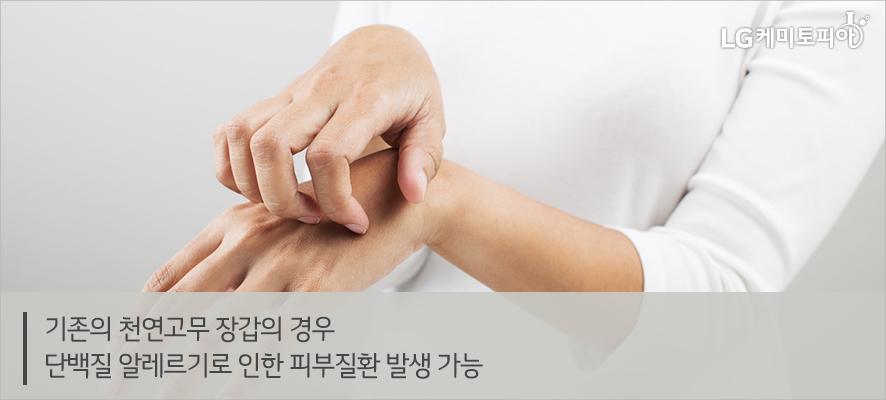 기존의 천연고무 장갑의 경우 단백질 알레르기로 인한 피부질환 발생 가능