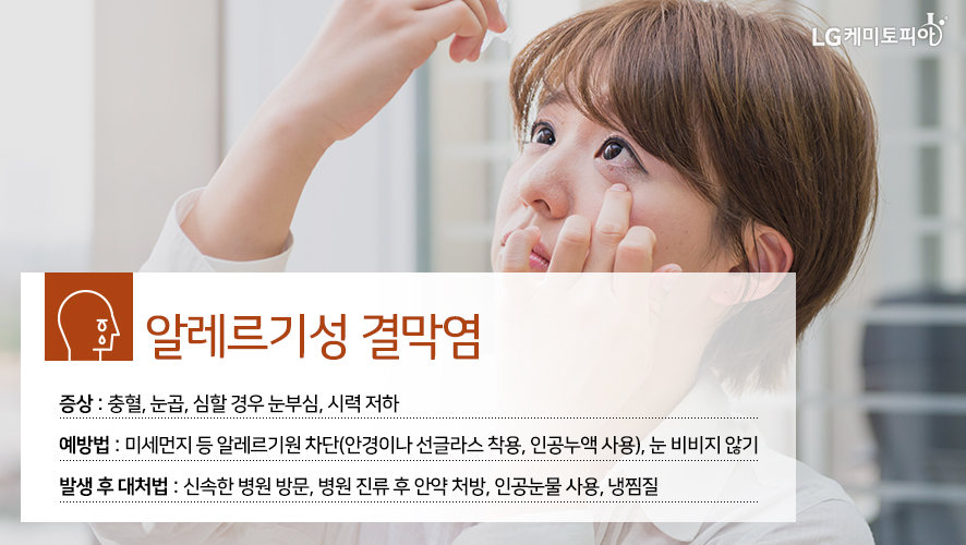 알레르기성 결막염: 증상: 충혈, 눈곱, 심할 경우 눈부심, 시력 저하 예방법: 미세먼지 등 알레르기원 차단(안경이나 선글라스 착용, 인공누액 사용), 눈 비비지 않기 발생 후 대처법: 신속한 병원 방문, 병원 진류 후 안약 처방, 인공눈물 사용, 냉찜질