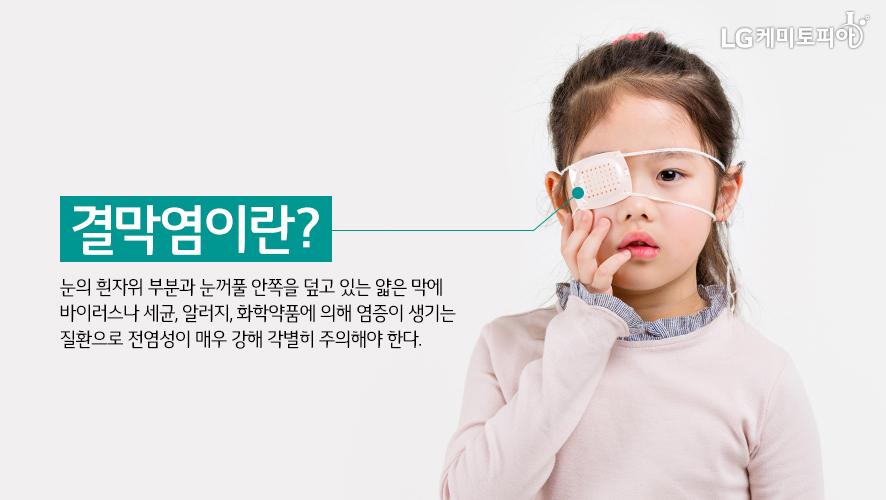 결막염이란? 눈의 흰자위 부분과 눈꺼풀 안쪽을 덮고 있는 얇은 막에 바이러스나 세균, 알러지, 화학약품에 의해 염증이 생기는 질환으로 전염성이 매우 강해 각별히 주의해야 한다.