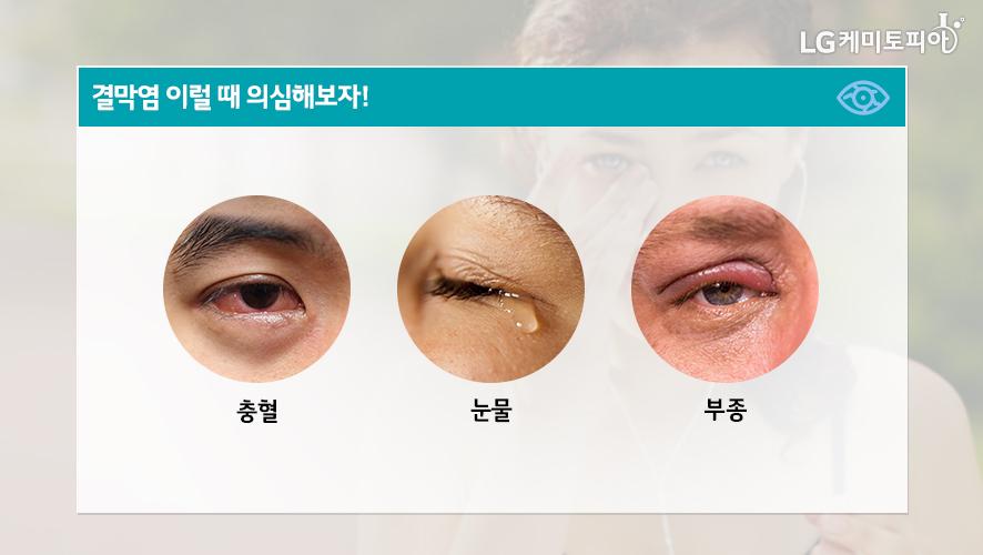 결막염 이럴 때 의심해보자! ①충혈 ②눈물 ③부종