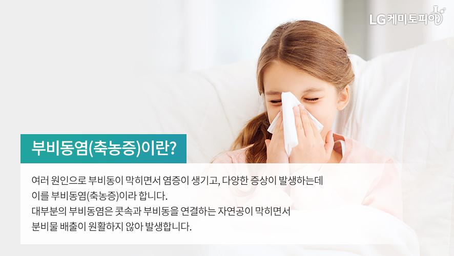 부비동염(축농증)이란? 여러 원인으로 부비동이 막히면서 염증이 생기고, 다양한 증상이 발생하는데 이를 부비동염(축농증)이라 합니다. 대부분의 부비동염은 콧속과 부비동을 연결하는 자연공이 막히면서 분비물 배출이 원활하지 않아 발생합니다.